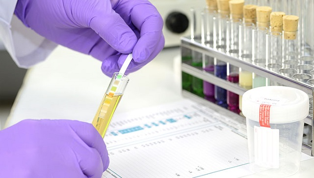 Kenya welcomes opening of drug-testing lab | The Chronicle